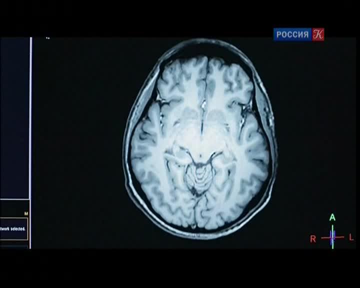 Наш второй мозг - Le ventre notre deuxieme cerveau