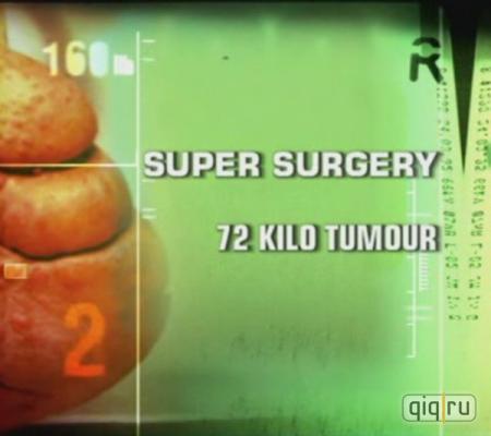 Discovery: Радикальная хирургия. Опухоль весом 72 килограмма - (Super Surgery. 72 Kilo Tumour)