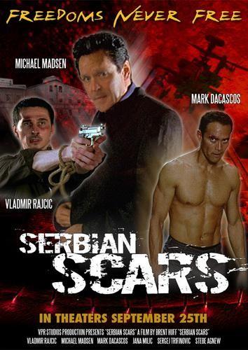 Шрам Сербии - (Serbian Scars)