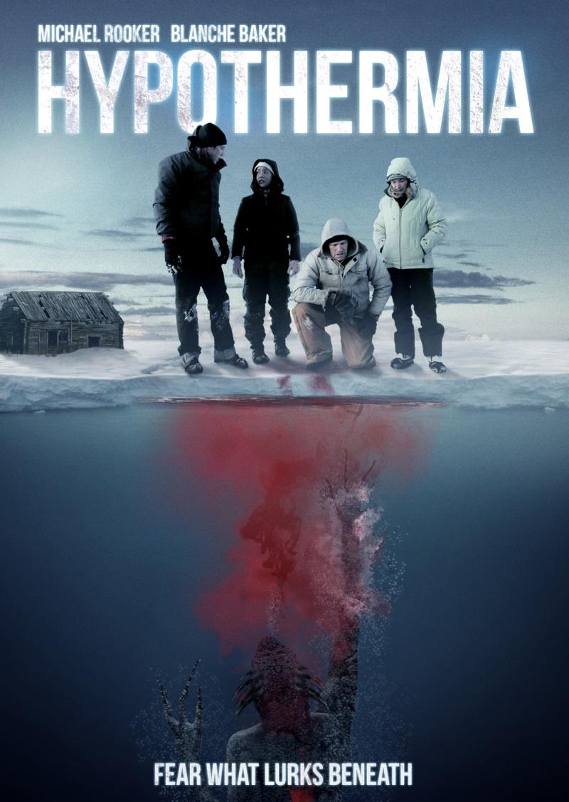 Гипотермия - Hypothermia