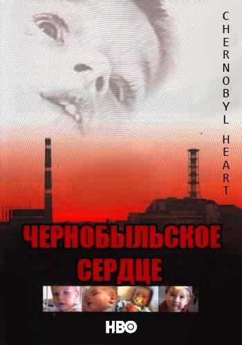 ������������� ������ - Chernobyl Heart