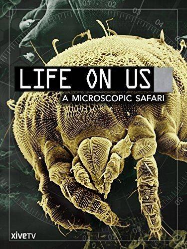 Жизнь на нашем теле - Life on Us